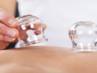 Cupping Therapy Brisbane